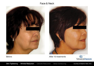 Face and Neck Before and After Venus Freeze
