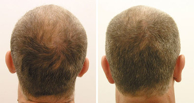 Hair Restoration: before and after
