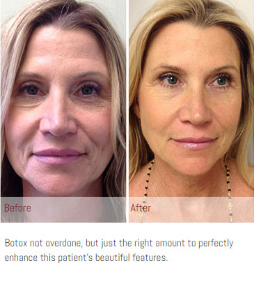Botox and More: Before and After