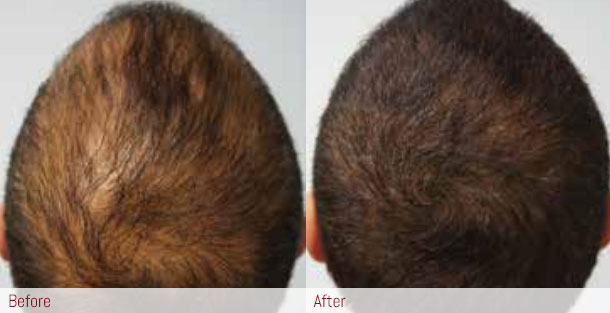 before and after: hair restoration