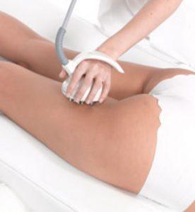 Venus Freeze Treatment