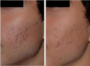 PicoSure Acne Treatment before and after